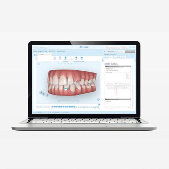歯型をデジタルスキャン
