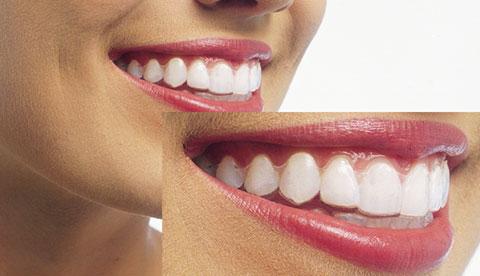 自分の歯並びが矯正できるか知りたい