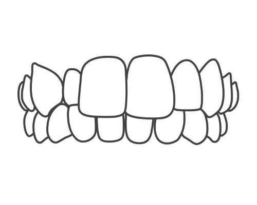 上顎前突(出っ歯)